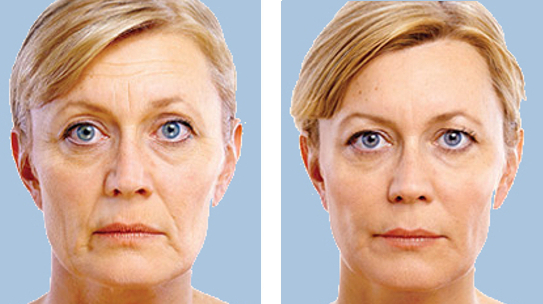 See what JUVEDERM® looks like on you | JUVEDERM® Canada